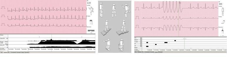 EKG-Move